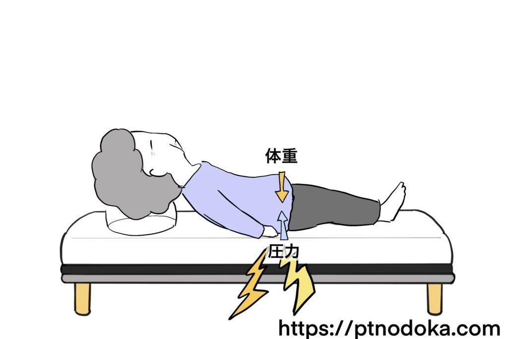 褥瘡の原因の圧力のイラスト