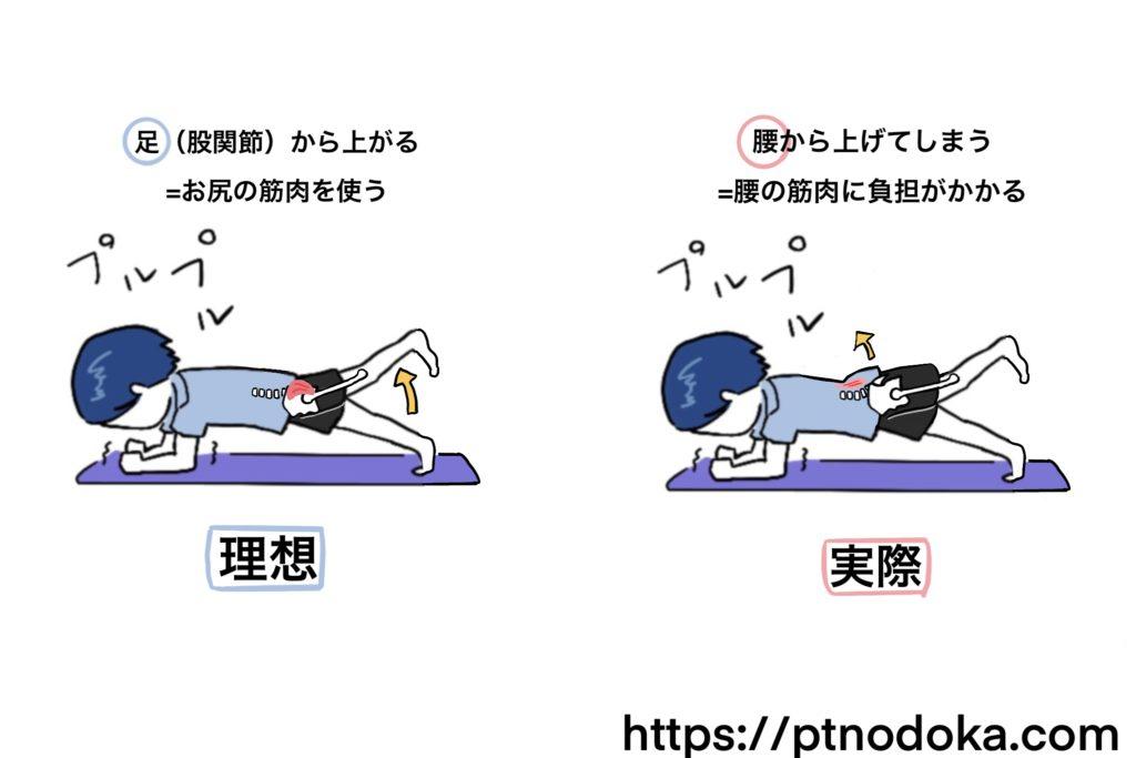 腰の筋肉の痛みの原因のイラスト
