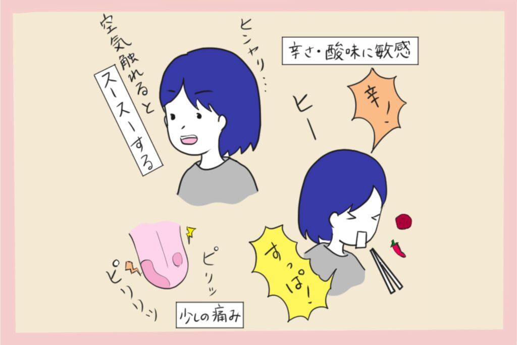 地図状舌のアイキャッチ画像